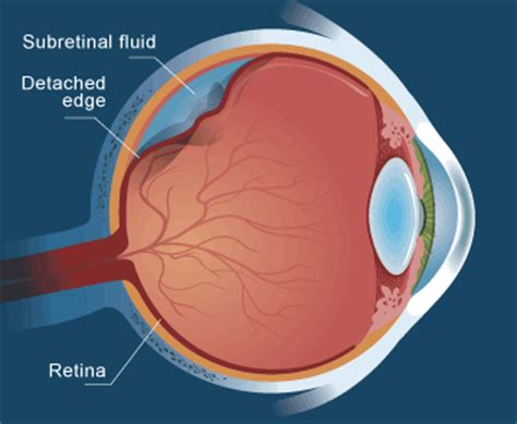 Detached Retina Blindness the family quot why a spoon cousin quot