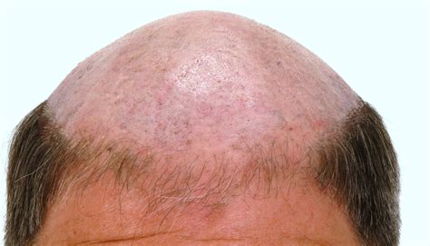 hair loss hair loss images