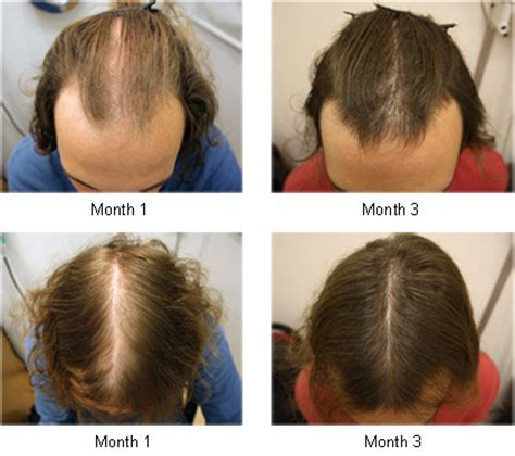 male pattern of hair loss happy with the results