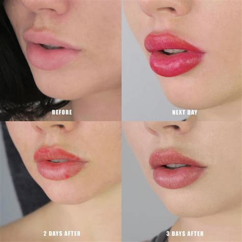 lips tattoo care permanent lip tattoo healing process the art of beauty