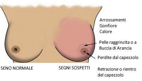 seni diversi tumore al seno come riconoscerlo tutto per