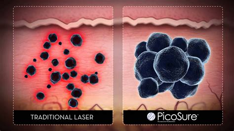 amazing tattoo removal removal with cynosure s picosure laser amazing