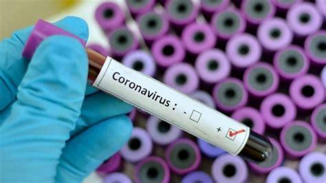 virus corona penyebab gejala pencegahan  obat