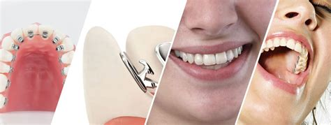 comfort dental hden lingual braces moorebank interest free plan from just 9 a day