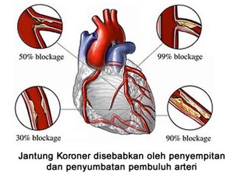 Atasi Penyakit Jantung Tanpa Operasi serangan jantung koroner tanpa operasi