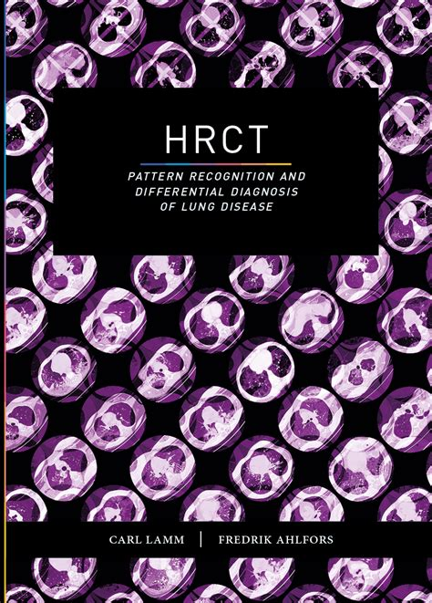 free download pattern recognition ebook ebook hrct pattern recognition and differential
