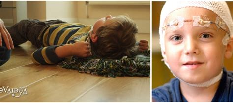 signs of a seizure in a do you recognize the signs of epilepsy in children evaidya health articles