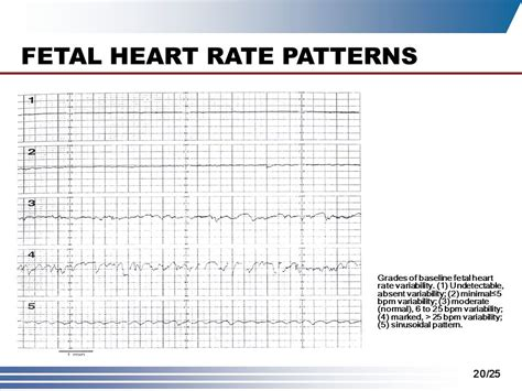 Pattern Heart Rate | intrapartum assessment ppt video online download