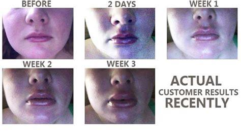 lip plumping testimonials