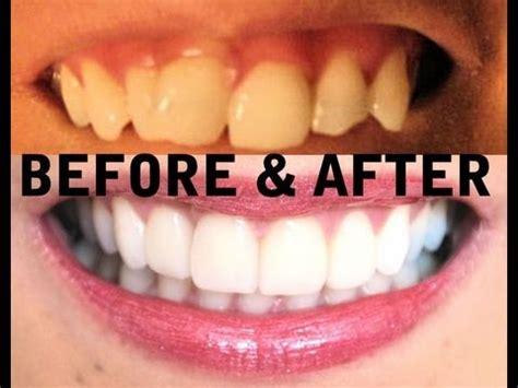 teeth   invisalign zoom teeth whitening