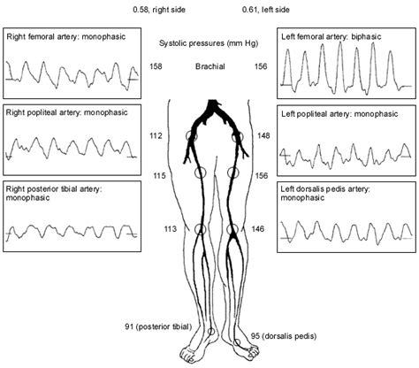 Chronic Critical Limb Ischemia Diagnosis Treatment And