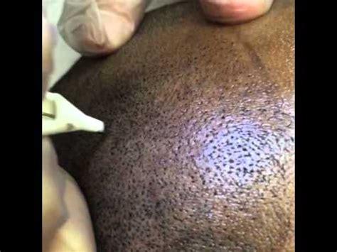 tattoo healing on black skin scalp pigmentation hair tattoo on dark skin at smc by tino