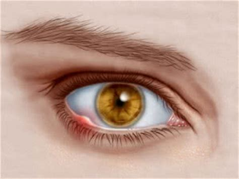 styes/hordeolum — what you should know