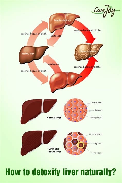 How Do I Detox My Liver Naturally by 17 Best How To Detox My Liver Images On Detox