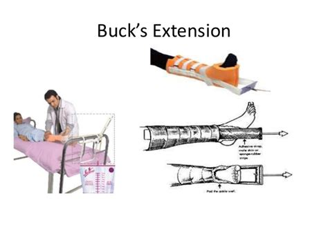 buck traction traction