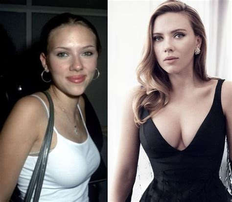 Johansson Has Looked Better by 48 Best Images About Plastic Surgery On