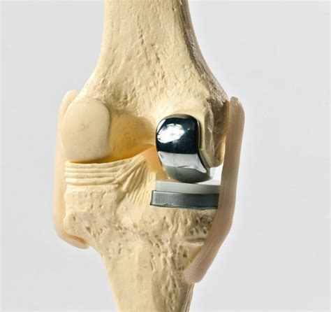 unicondylar knee replacement orthopaedic associates of