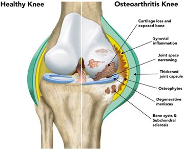 left knee ligaments diagram new osteoarthritis genes discovered paving way for new