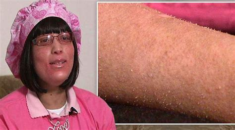 Hair Follicles In Older Women Narrowing | shanyna isom suffers from mystery illness which causes her