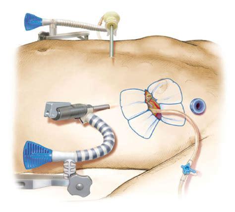 arteria mammaria interna thoraxkirurgisk symposium kirurgen