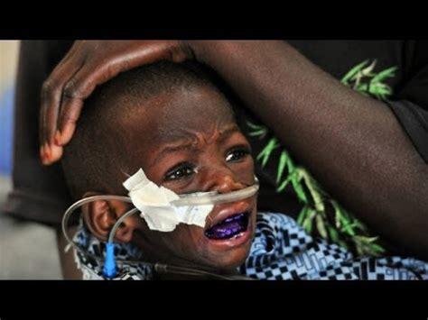 20 million dying of starvation in sahel africa children