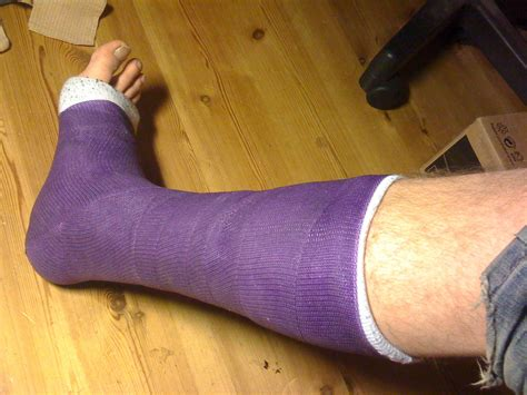 Or Casts File Leg Cast Jpg Wikimedia Commons