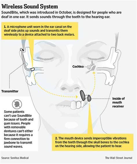 how to a deaf not to bite a soundbite for deafness