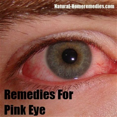 pink eye remedies for toddlers