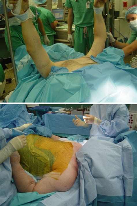 draping a patient technique of patient positioning and draping for surgical