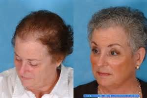 hair styles for with center bald spots female hair transplant bauman medical group