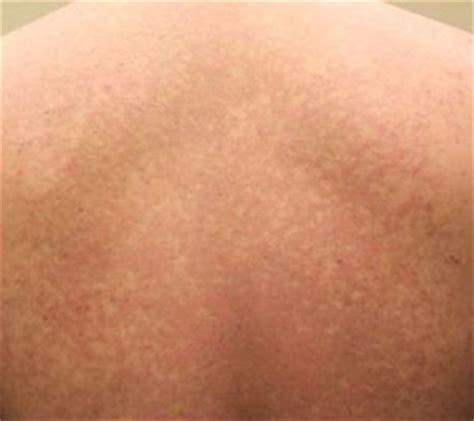 imagenes de manchas blancas en la espalda hongos en la piel 191 qu 233 es la pitiriasis versicolor
