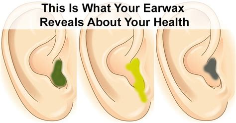 color of earwax the color of your earwax reveals what s wrong with your health