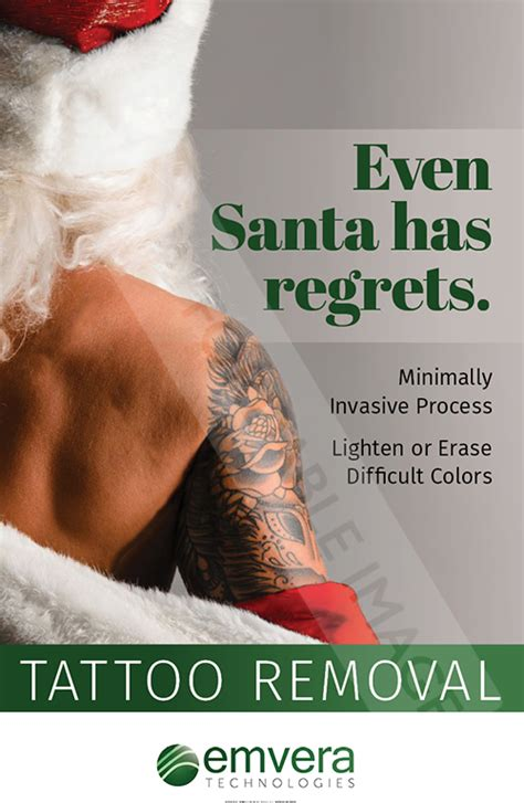 outside in tattoo removal santa regret cosmetic marketing store
