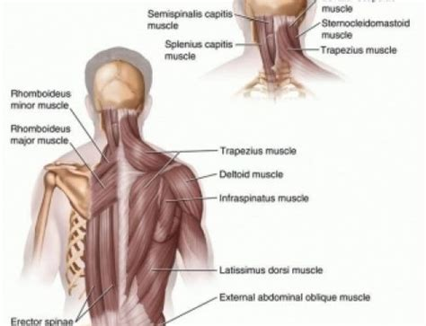 c section shoulder pain upper cross syndrome neck shoulder pain energise therapy