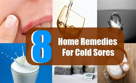 8 home remedies for cold sores treatments cure