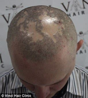 shaved head tattoo bald turn to hair tattoos to creates the illusion of