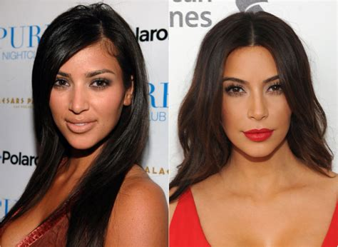 kim kardashian plastic surgery before after pictures 2015 kim kardashian before and after plastic surgery worldnewsinn