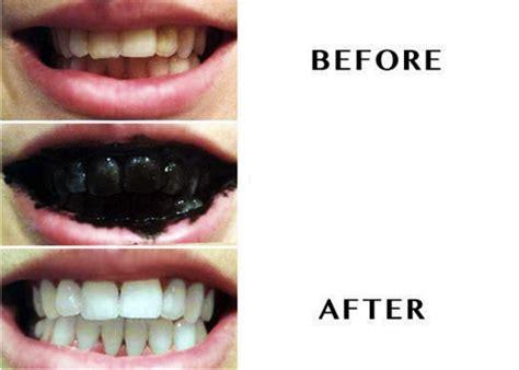 teeth whitening works brightest smile  boston