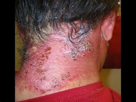 home remedies for henna tattoo allergy effective home remedies to treat hair dye allergies