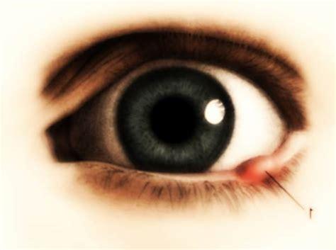 orzaiolo interno occhio rimedi naturali per l orzaiolo benessere leonardo it