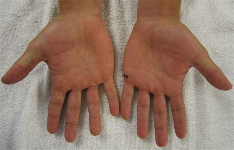 hand foot mouth disease rash file characteristic rash of hand foot and mouth disease