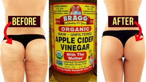 Miller I Small And Cellulite by How To Lose Thigh Fast How To Get Rid Of Cellulite