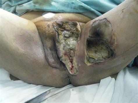 imagenes de heridas asquerosas pie diab 233 tico y salvamento de extremidades otras heridas