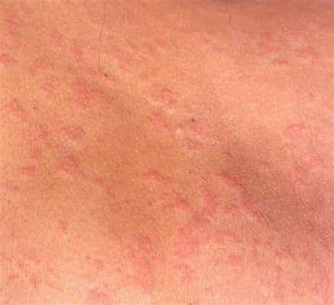 christmas tree pattern rash pictures christmas tree pattern dermatology finasteride treatment