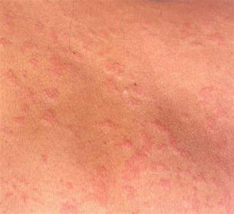 christmas tree pattern rash on back christmas tree pattern dermatology finasteride treatment