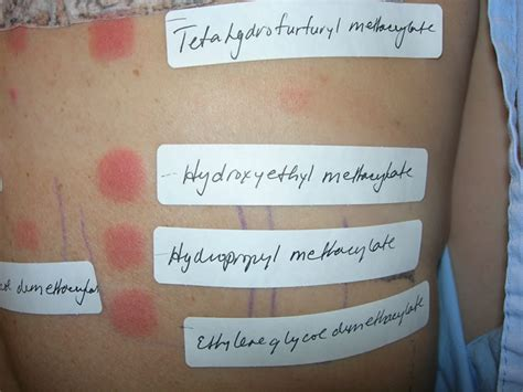 patch test nichel wsiat discussion paper allergic contact