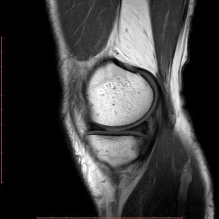 tattoo mri anterior horn of lateral meniscus tear mri