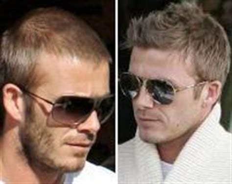 celebrity secret to hair growth celebrity hair loss