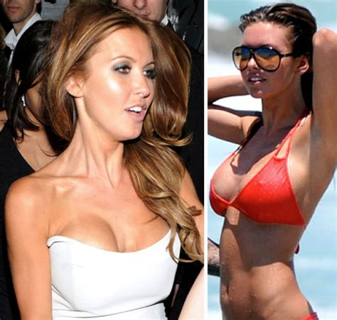 breast implants surgery all about celebrity breast july 2010 celebrity plastic surgery breast