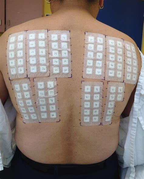 patch test nichel allergy patch testing acd